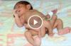 Six-legged baby born in Pakistan